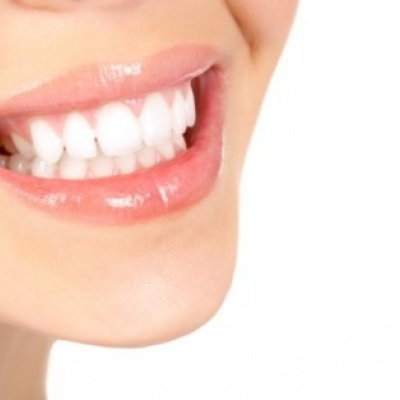 BDBS and BDA concerned about OTC teeth whitening kits