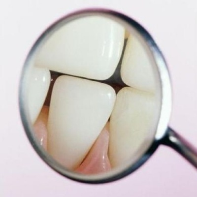 Joint approach is needed to tackle childhood tooth decay and obesity