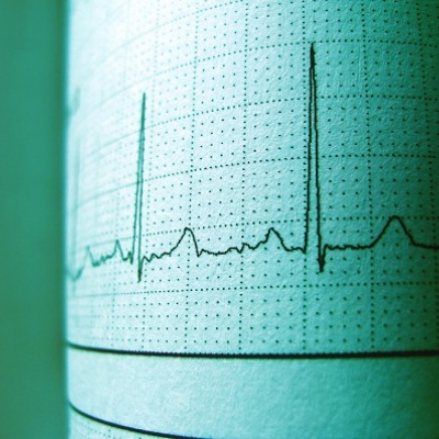 The University of Manchester has created a simple procedure that enables people to observe their ECG