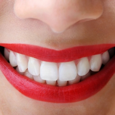 Increased fines and prosecutions in illegal tooth whitening in clinics and spas
