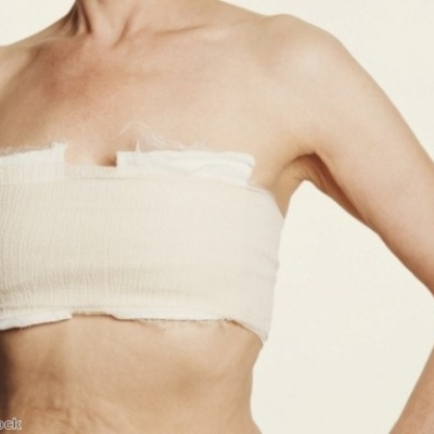 Bio-patch sensing device could improve post-op breast reconstruction success