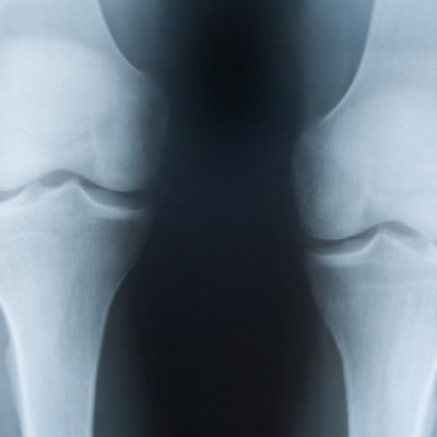 Magnetic nanoparticles 'can play role in bone regeneration'