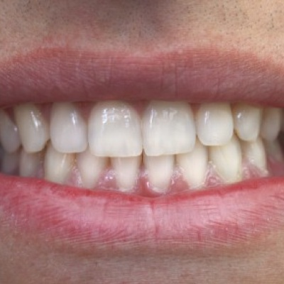 New dental fillings 'could actively help to repair tooth decay'