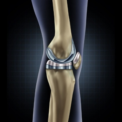 Printable hydrogel developed for knee replacements