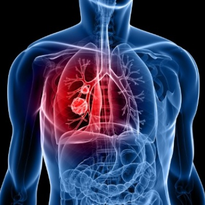 New biomarker 'could help guide lung cancer immunotherapy'