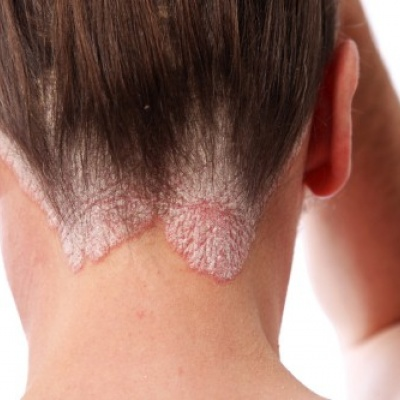 Janssen reports positive clinical data for new psoriasis drug Tremfya