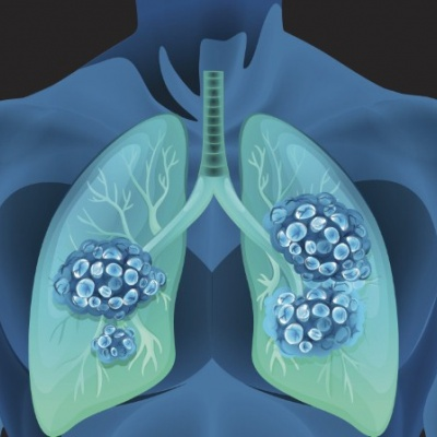 Bristol-Myers Squibb's Opdivo approved for lung cancer by NICE
