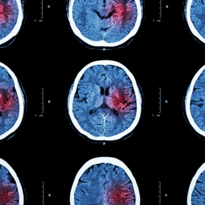 New stem cell therapy 'can help repair brain damage after stroke'