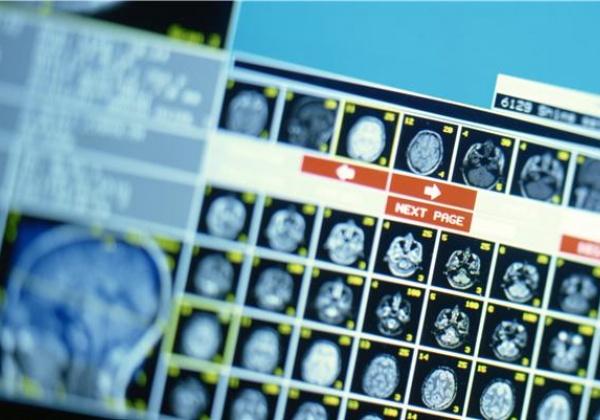 HEALTH REPORT: Traumatic Brain Injuries